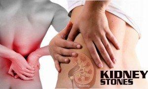 kidney-stones-300x180
