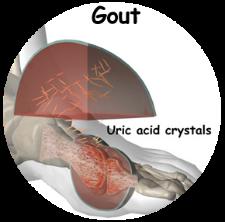 arthritis_gout_intro01