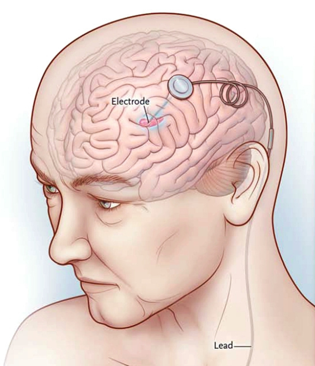 Pain Pacemakers for the Brain: Deep Brain Stimulation - Dr ...
