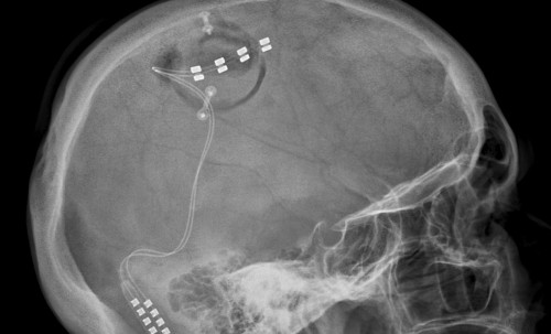 Pacing the Brain for Pain: Motor Cortex Stimulation, Part ...